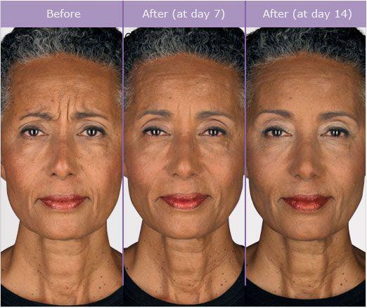 Botox Woman 111 Lines