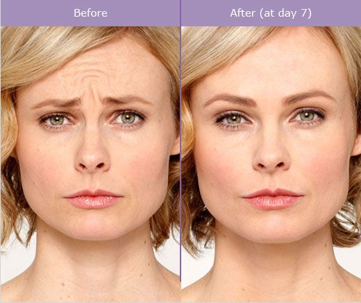 Botox in London Subtle Anti-Ageing Injections - 111 Harley St