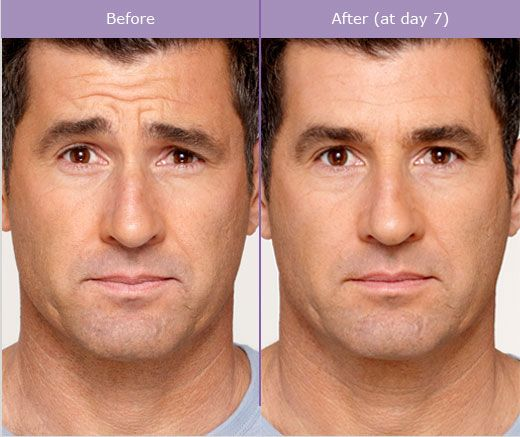 Male Botox Foreheadlines