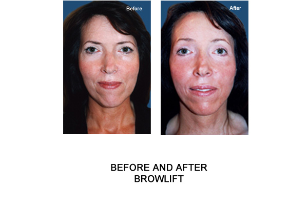 brow lift london