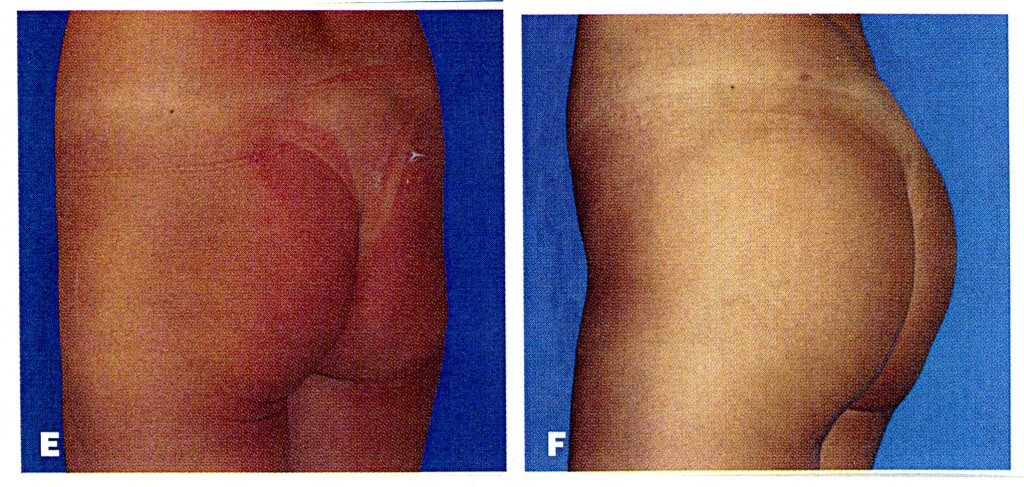 buttock implants london