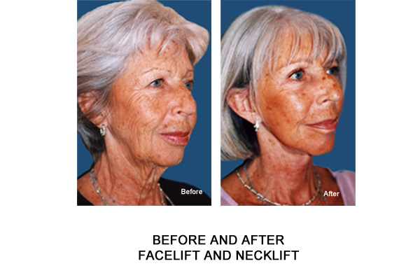 necklift facelift london