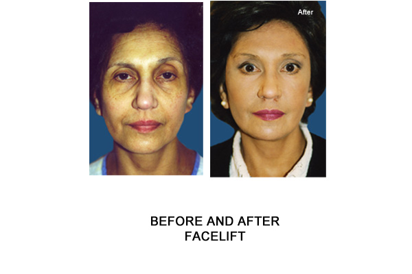facelift london