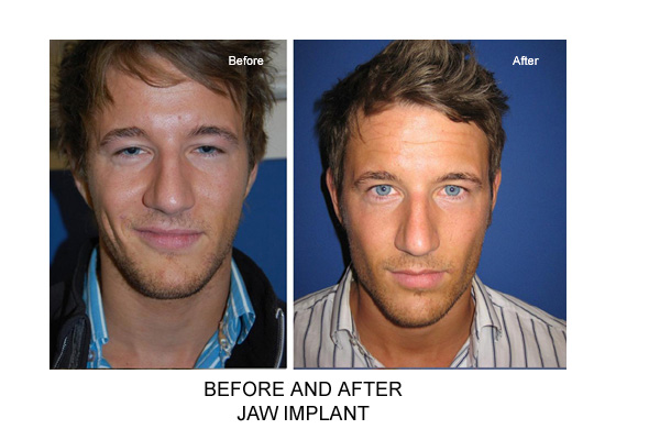 Before & After Jaw Implant Fig 1
