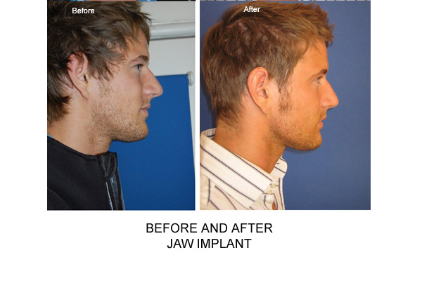 Before & After Jaw Implant