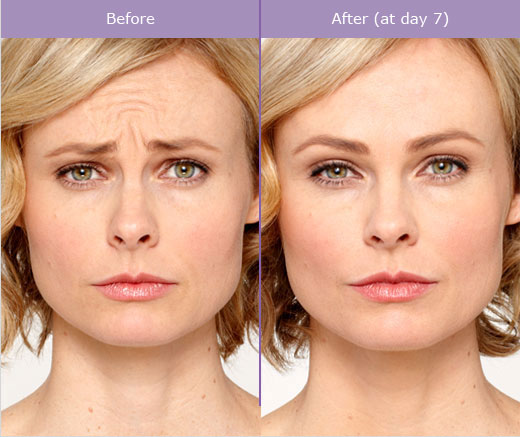 3 Female Before and After Botox Treatment