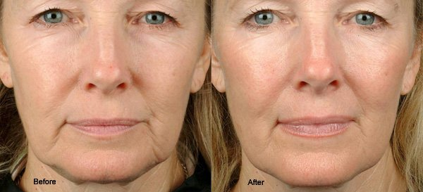 thermage before and after woman face