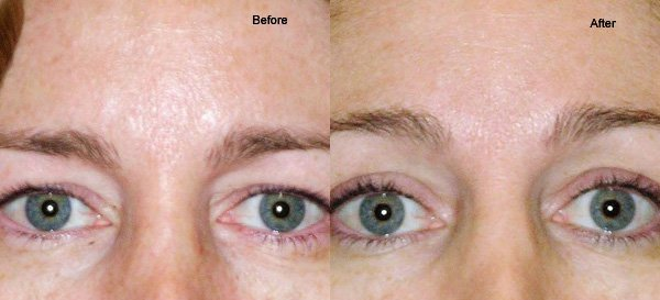 thermage before and after woman eyes
