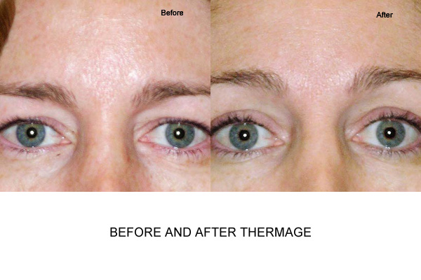 Thermage Treatment Female Brow Furrows
