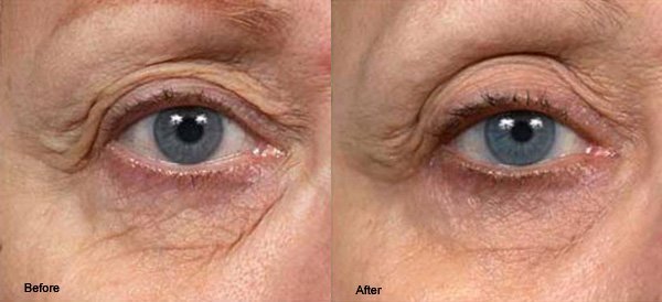 thermage before and after eyes