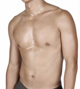 Gynaecomastia Moob Reduction