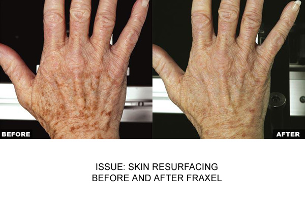 Fraxel For Age Spots On Hands