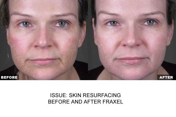 Fraxel Post Skin Resurfacing