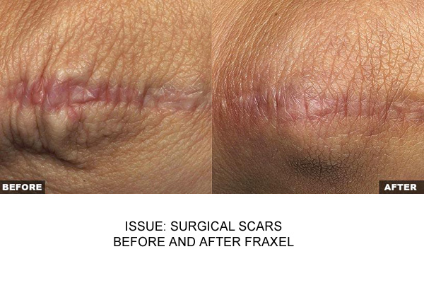 Fraxel For Surgical Scars