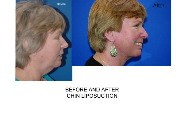 Liposuction On The Chin Area