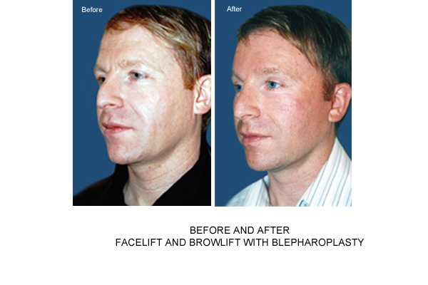 blepharoplasty brow lift face lift london