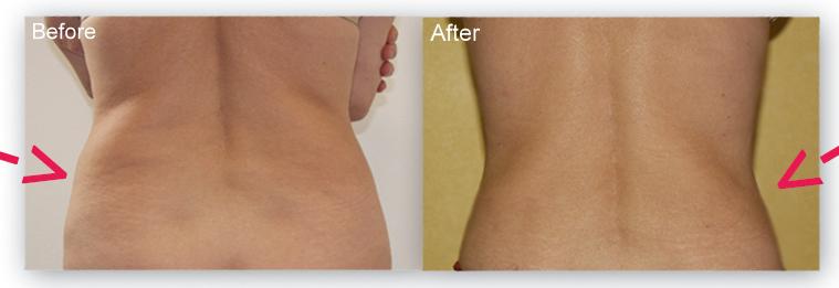 Laser Liposuction On The Flanks / Love Handles