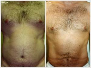 Vaser Lipo Male Stomach