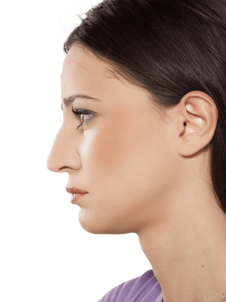 non surgical nose job in London