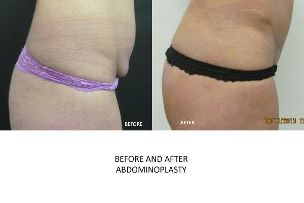 abdominoplasty london surgery