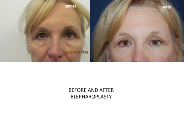blepharoplasty surgery london