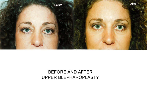 Before & After Blepharoplasty