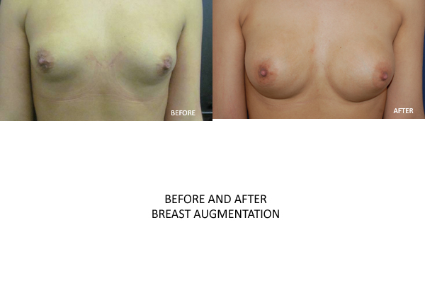 breast augmentation london surgery