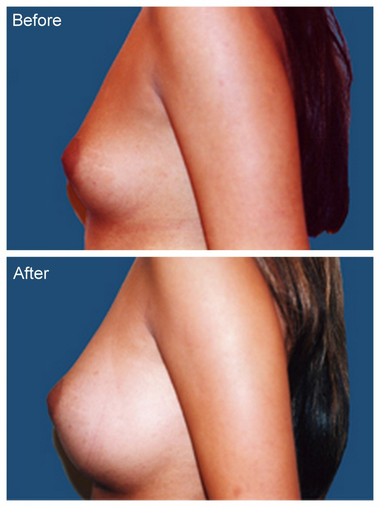 Male breast enhancement site