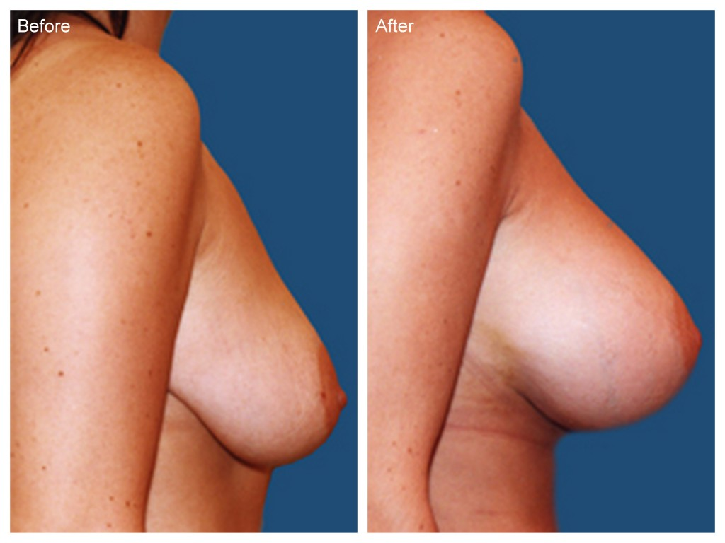 Breast Augmentation Before & Afters Photos Doctor