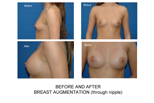 Remarkable, this Augmentation breast breast implant information web sorry, that