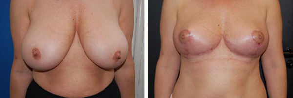 Before & After Breast Lift Photos