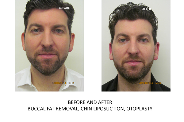 Liposuction on Chin / Cheeks Portrait