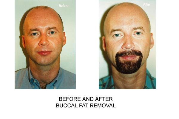 Before & After Buccal Fat Removal Fig 1