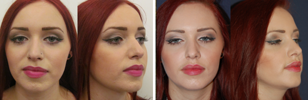 Before & After Buccal Fat Removal Photos