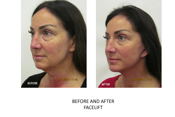 facelift london surgery