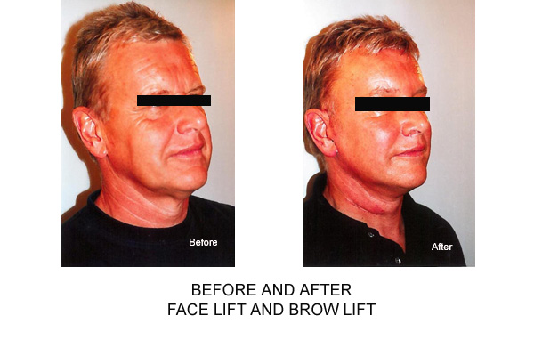 Before & After Face lift Brow lift
