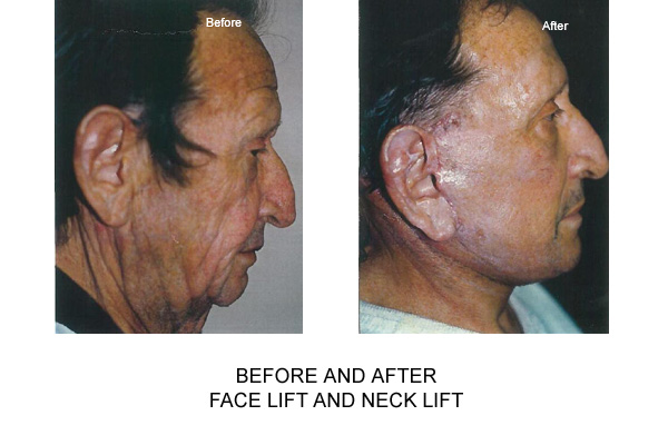 Before & After Facelift Necklift Fig 2