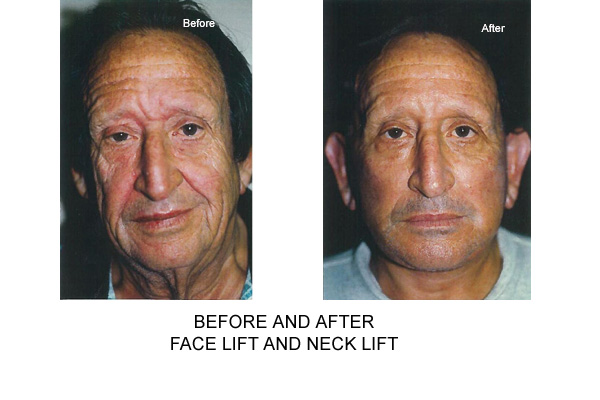 Before & After Facelift Necklift Fig 1