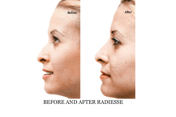 Before & After Non Surgical Nose Job