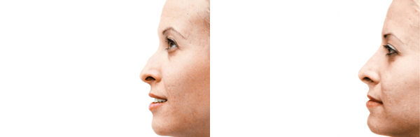 Before & After Non-Surgical Rhinoplasty