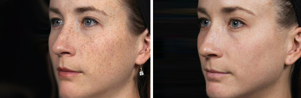 Before & After Non-Surgical