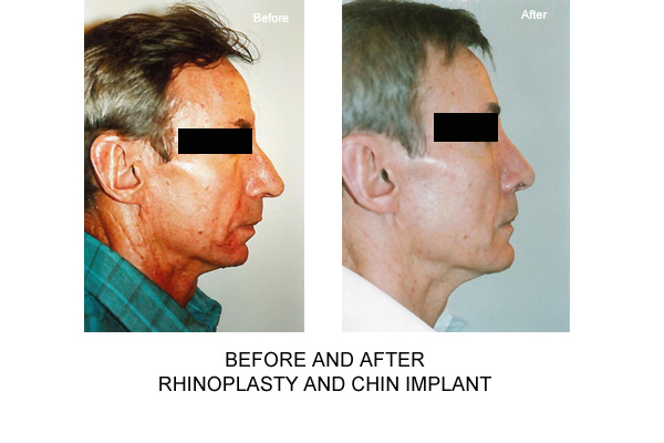 Before & After Rhinopalsty Fig 2