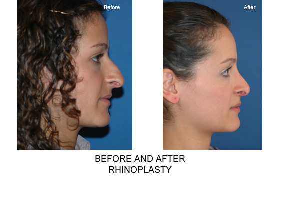Before & After Rhinopalsty
