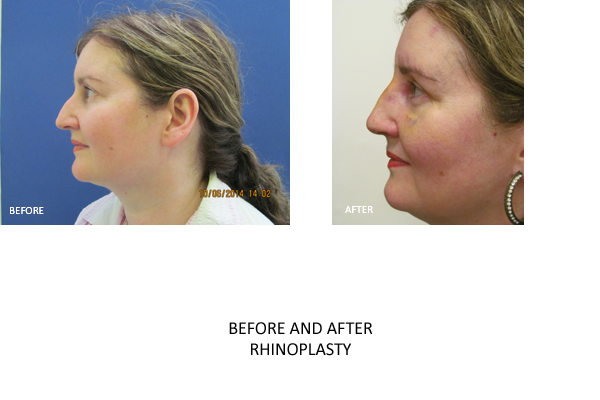 rhinoplasty london surgery
