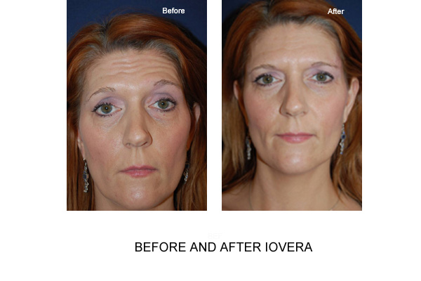 Before & After Iovera Fig 2