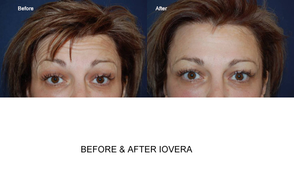 Before & After Iovera Fig 1