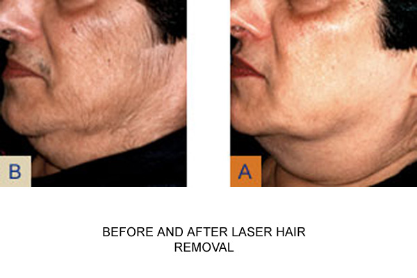 Before & After Laser Hair Removal Fig 1