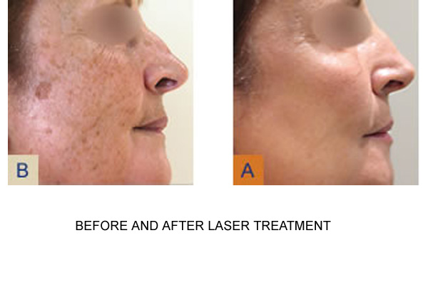 Before & After Laser Treatment Fig 1