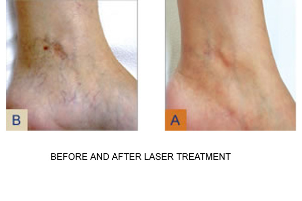 Before & After Laser Treatment