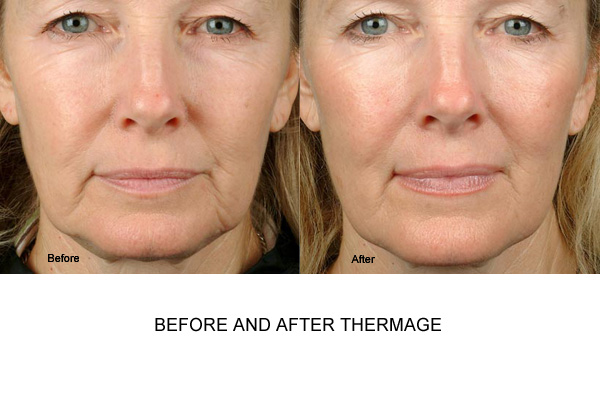 Before & After Thermage Fig 2